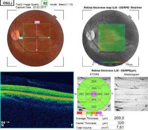 Оптическая когерентная томография левого глаза.