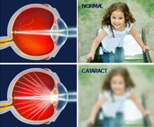Симптомы катаракты.