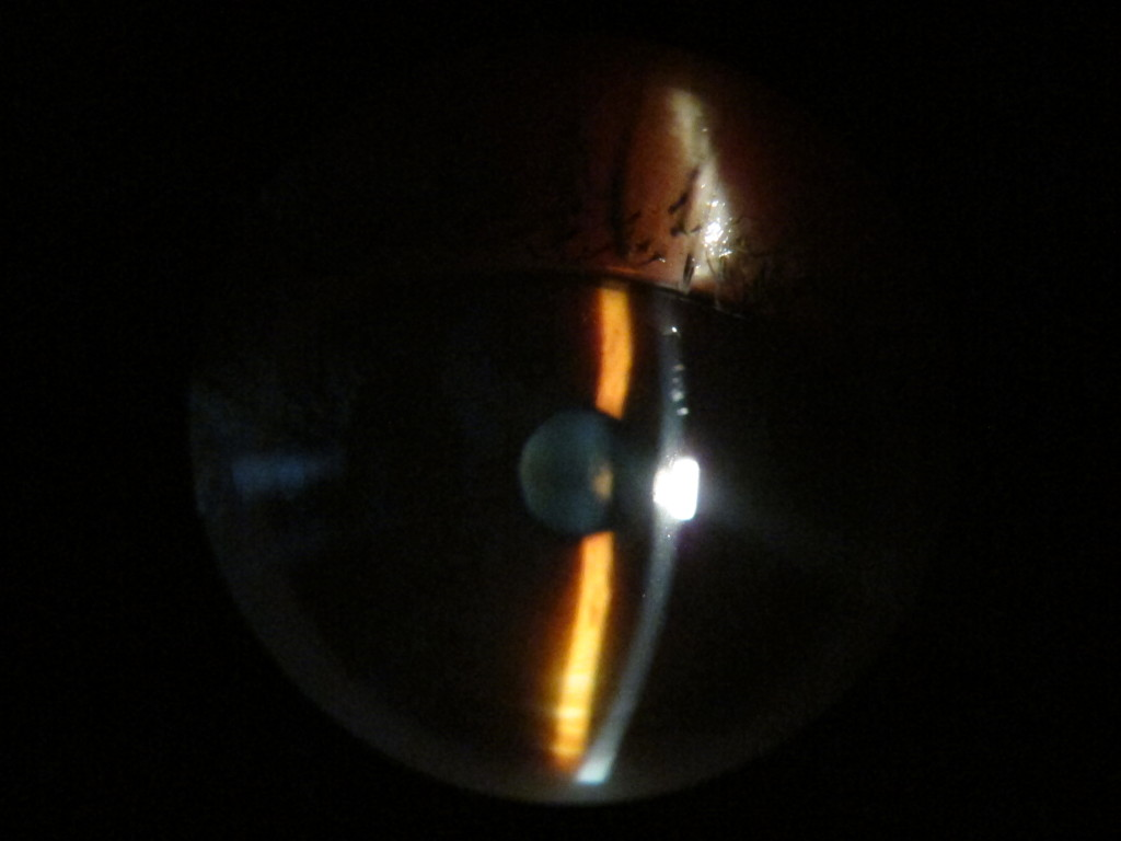 Zeiss slit lamp
