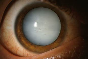 Перезрелая катаракта.