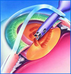 Факоэмульсификация катаракты.