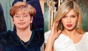 Вера Брежнева до и после  лазерной коррекции зрения
