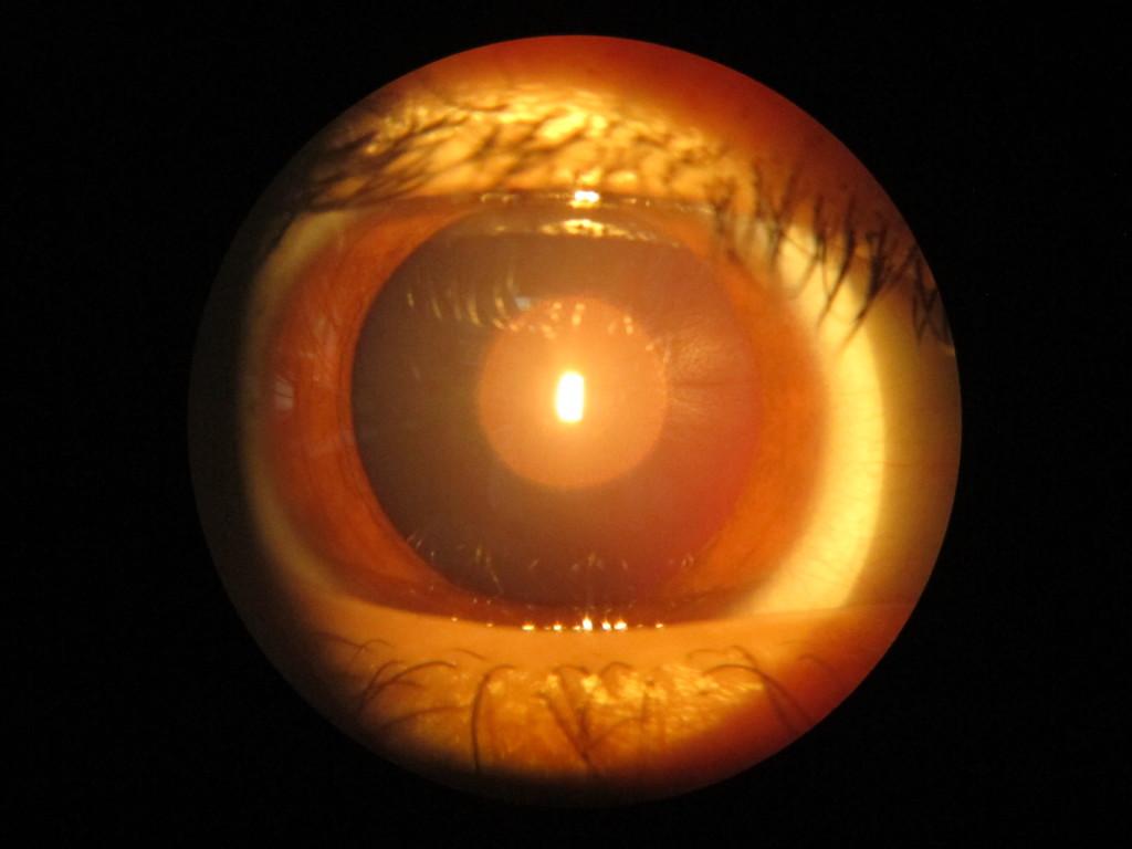 врожденная ядерная катаракта
