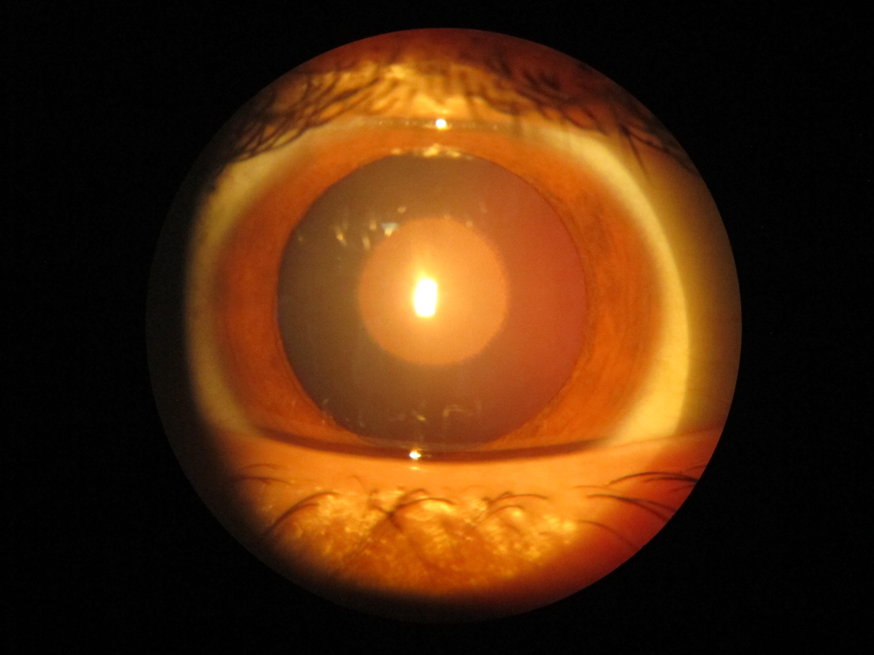 Лучшие витамины капли для глаз при близорукости